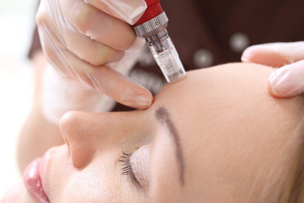 Needle mesotherapy treatment aesthetic execution in the beauty salon